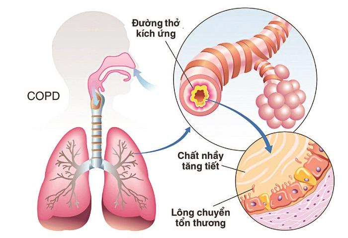 Bệnh COPD là một căn bệnh vô cùng nguy hiểm.