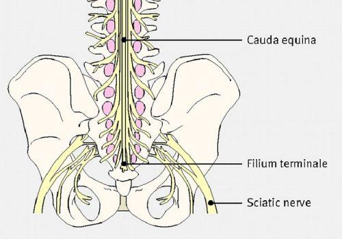 Hội chứng đuôi ngựa