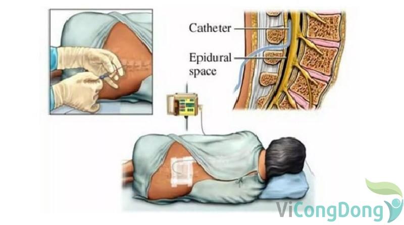 Công dụng của tiêm ngoài màng cứng chữa thoát vị đĩa đệm