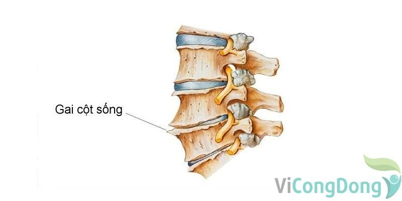Đau bụng dưới âm ỉ kèm đau lưng là dấu hiệu bệnh gì