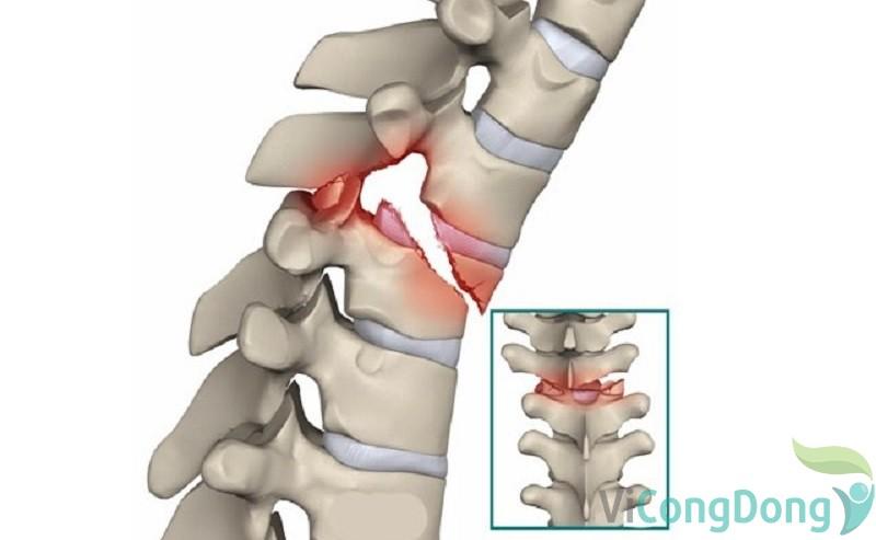 Nguyên nhân đau cơ lưng