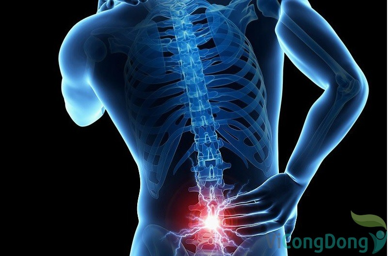Đau cột sống thắt lưng có chữa được không
