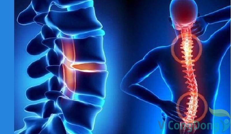 Đau lưng bên trái dấu hiệu hiệu của bệnh gì