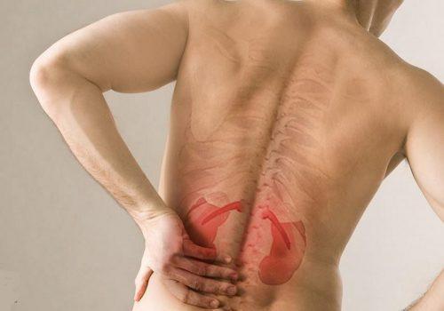 Triệu chứng đau lưng thận