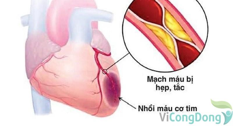 Đau lưng trên tức ngực khó thở triệu chứng nhồi máu cơ tim