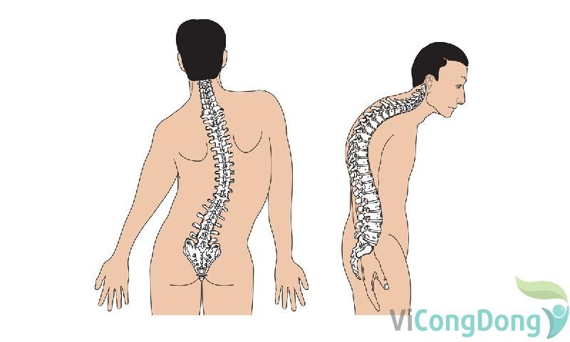 Đau lưng vẹo cột sống