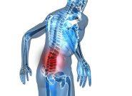Đau thắt lưng là bệnh gì