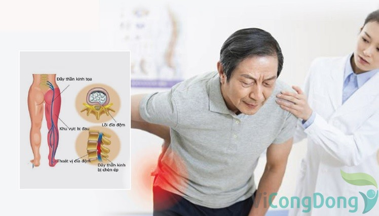 Cách khắc phục tình trạng đau nhức từ mông xuống bắp chân