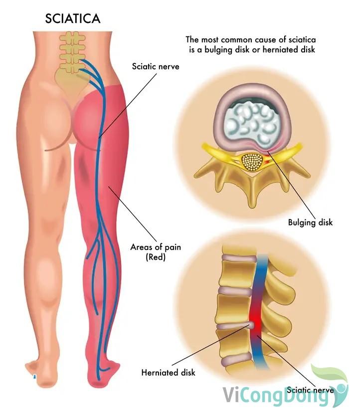 Đau nhức từ mông xuống bắp chân phải