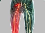 Đau nhức từ mông xuống bắp chân trái