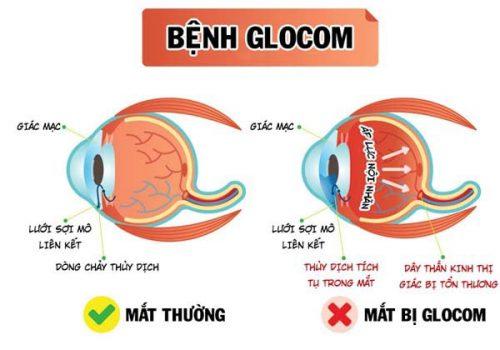 bệnh glocom