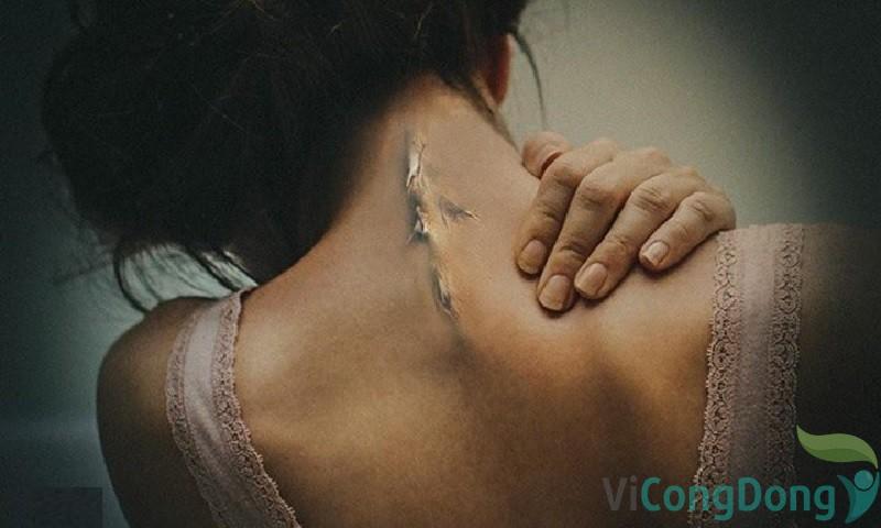 nguyên nhân bệnh lý dẫn đến đau bả vai
