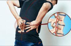 Triệu chứng viêm cột sống dính khớp