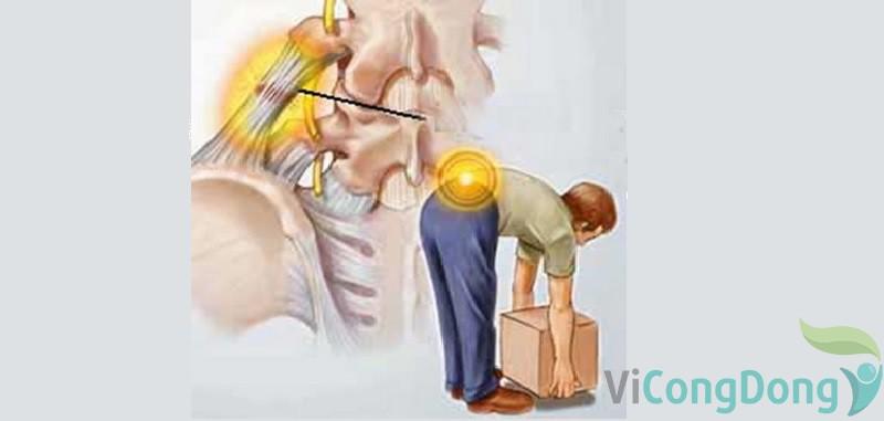 Bê đồ nặng bị đau lưng nguyên nhân