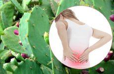 Chữa đau lưng bằng cây xương rồng