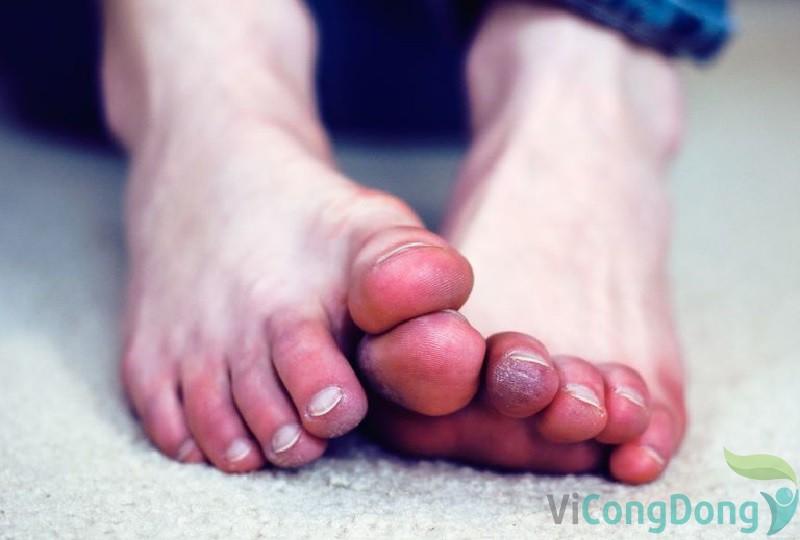 Đau đầu ngón chân bị đau như kim châm