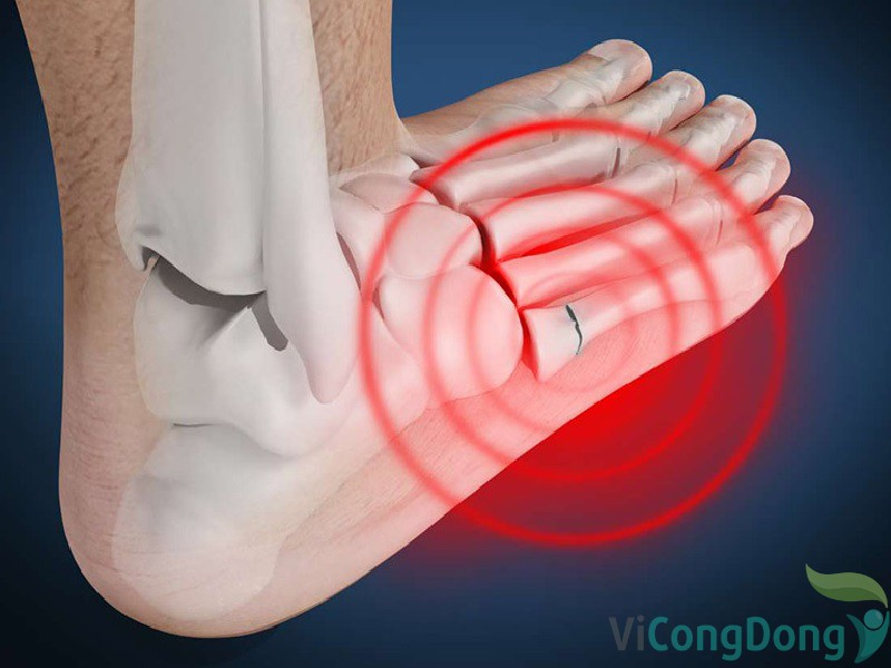 Đau khớp bàn chân là bị làm sao