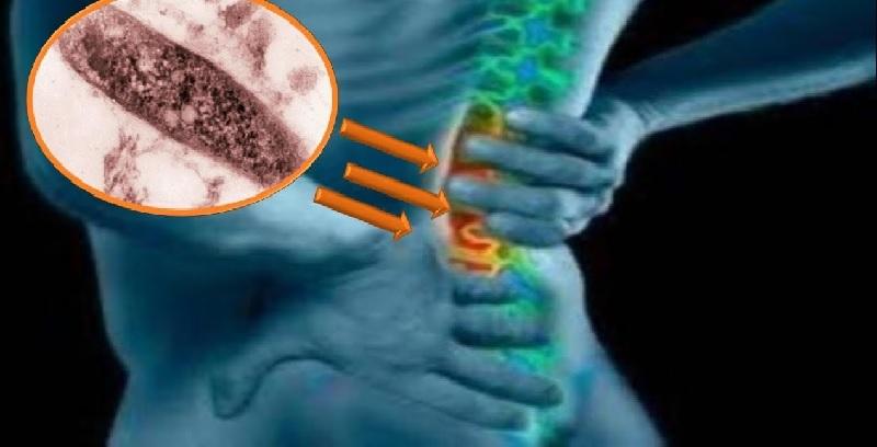Bệnh lao xương có lây không