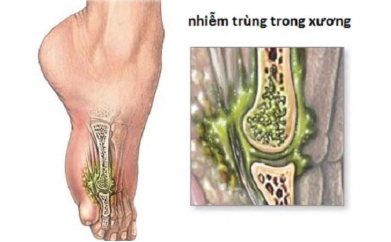 Bệnh lao xương có nguy hiểm không