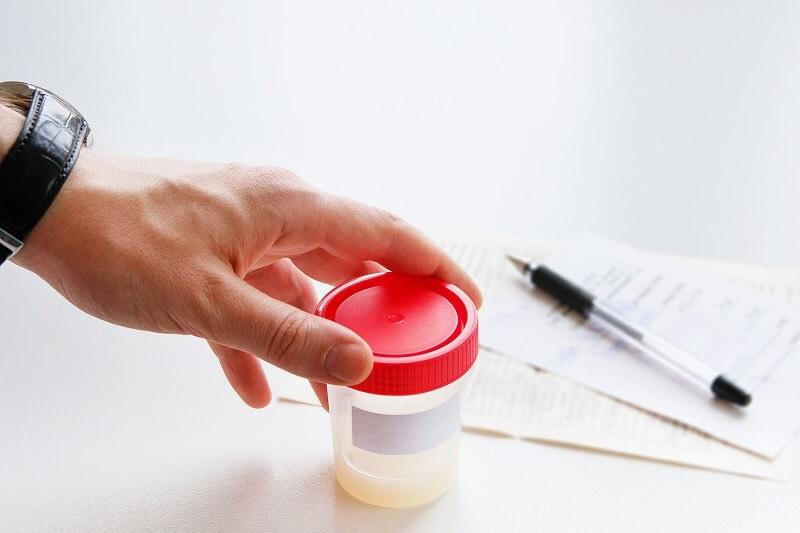 Cách nhận biết tinh trùng khỏe thông qua việc xét nghiệm tinh dịch đồ