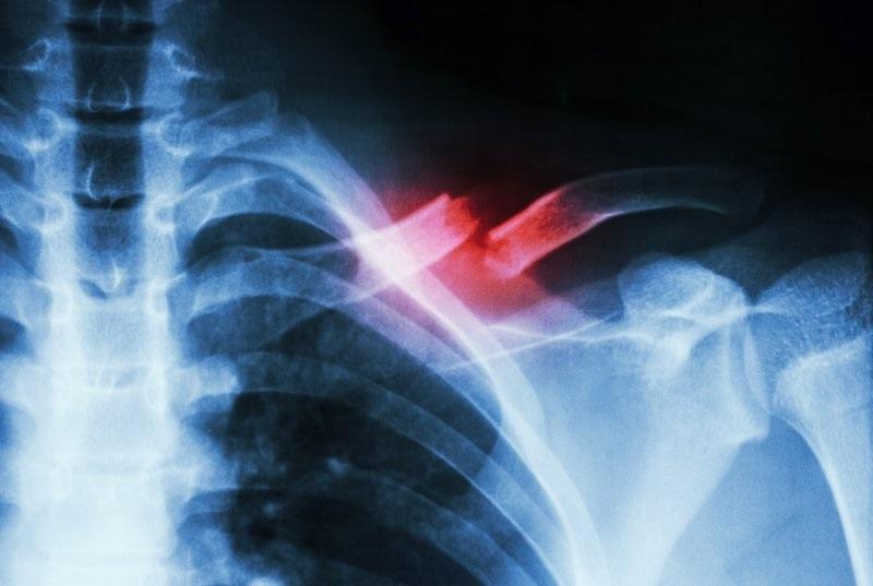 Đau xương ức bên trái do chấn thương xương đòn